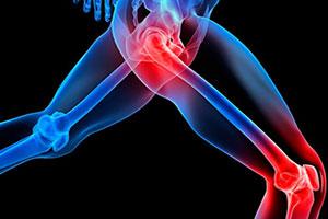 Препараты для суставов и связок в спортивном питании: витамины, спортивные добавки
